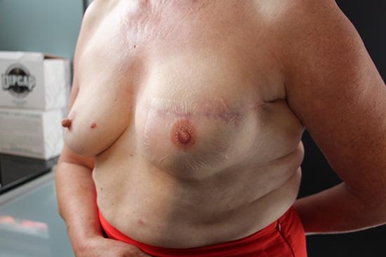 Femme avec pansement après tatouage 550x367