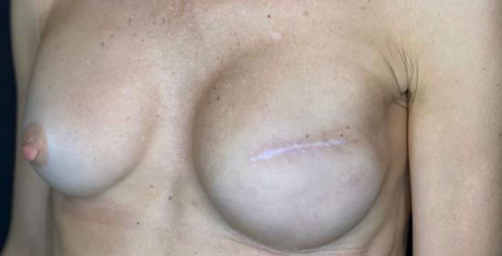 «Les cicatrices doivent être stabilisées, d'aspect plutôt banches et fines que rouges, rosées ou violacées.»